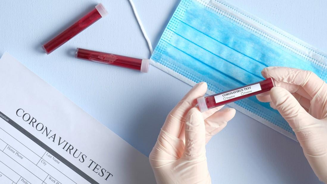 Coronavirus România, noul bilanț: 13.837 cazuri confirmate, 5.454 vindecate, 827 decese